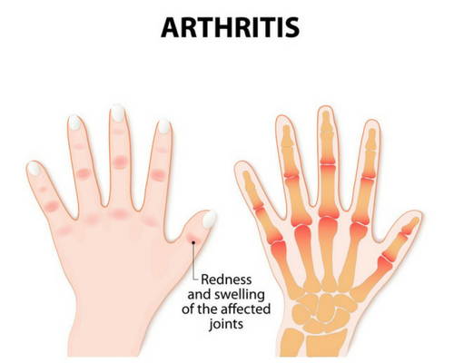 App development: Arthritis Society in Canada