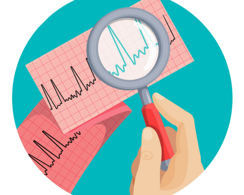 Atrial Fibrillation Association confirms patient benefits